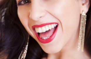 Smile-hack: the quickest way to straight teeth